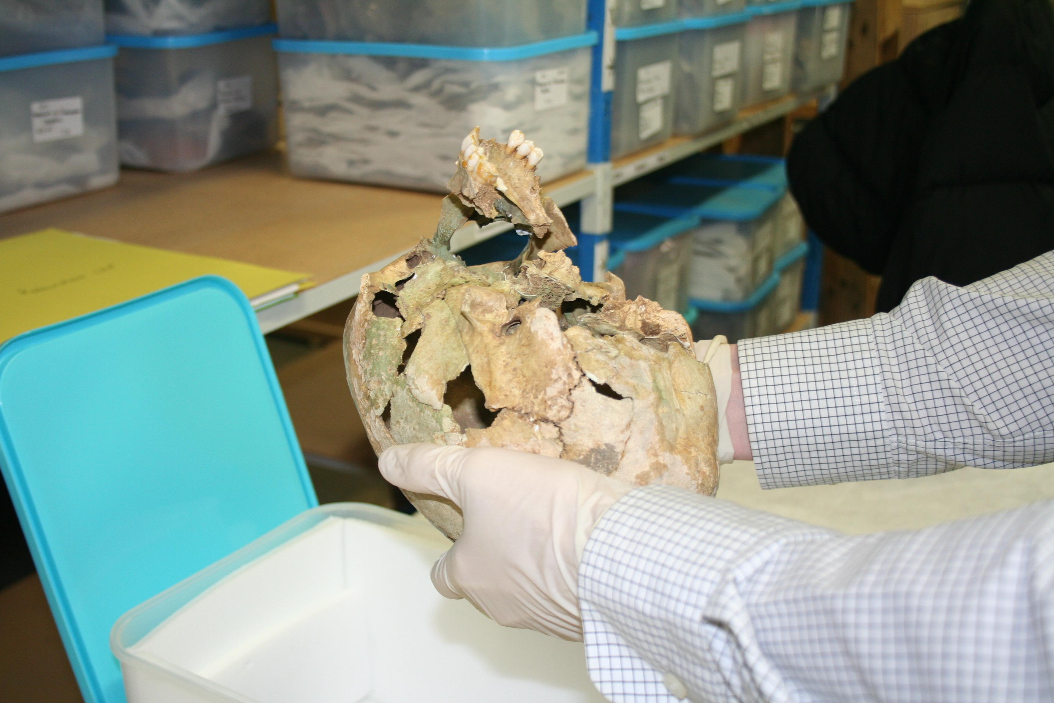 Etude des os pétreux du crâne de la dame de Vix